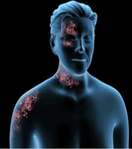 Postherpetic Neuralgia