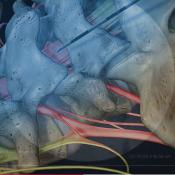 Lumbar Epidural Steroid Injection2